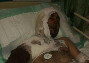 اسیدپاشی پدری روی پسر و عروسش در خلخال+تصویر